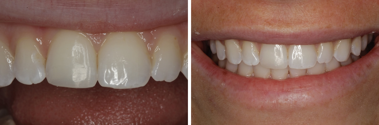 Trauma to Front Tooth - After