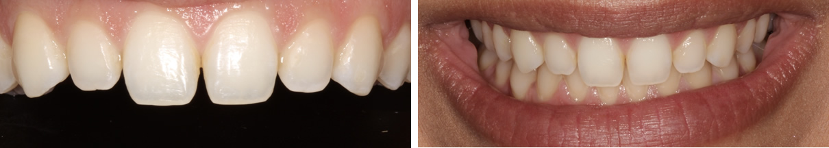 Smile Rejuvenation with Direct Bonding - Before