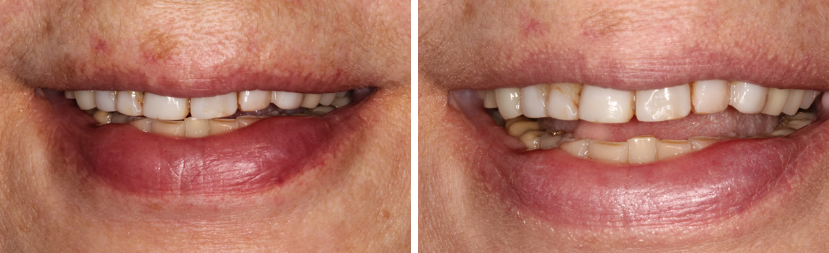 Smile Rejuvenation using Minimally Invasive Approach - Before