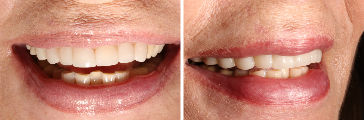 Smile Rejuvenation using Minimally Invasive Approach - After