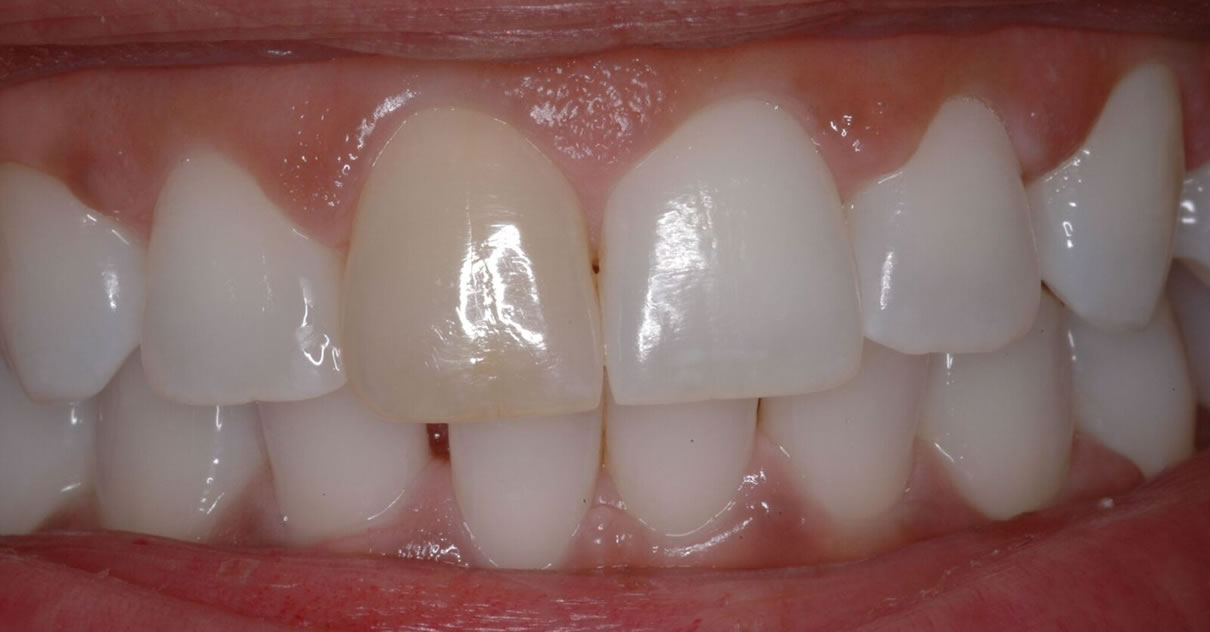Composite Bonding (Case #3) - Before