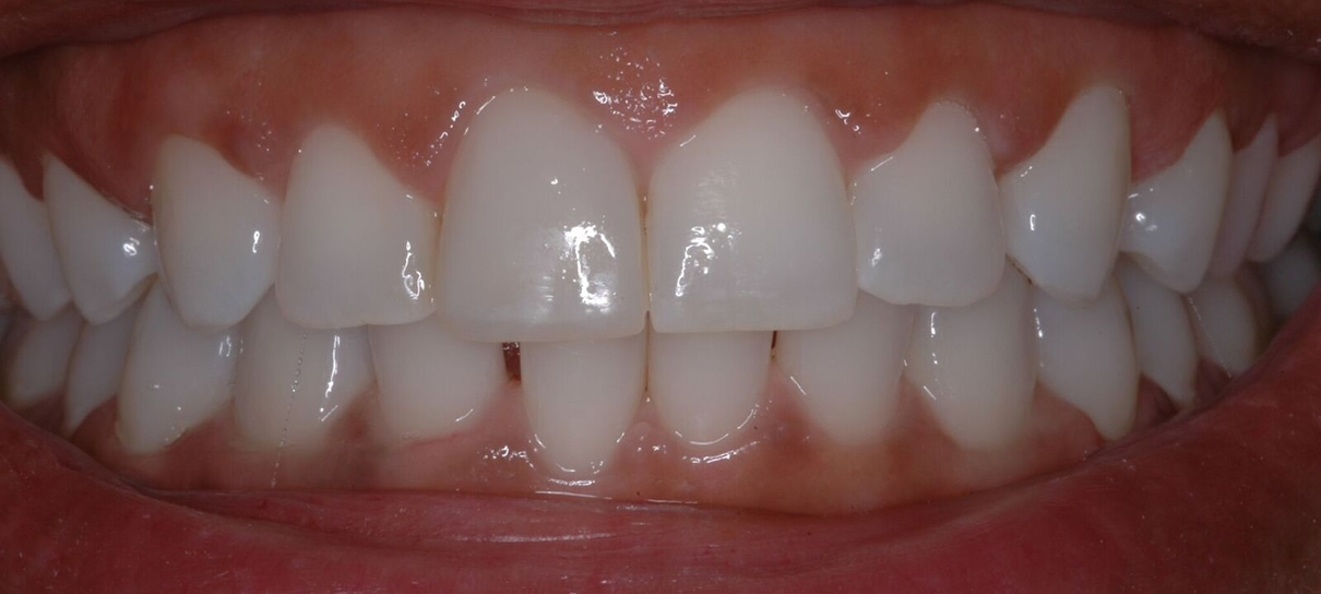 Composite Bonding (Case #3) - After