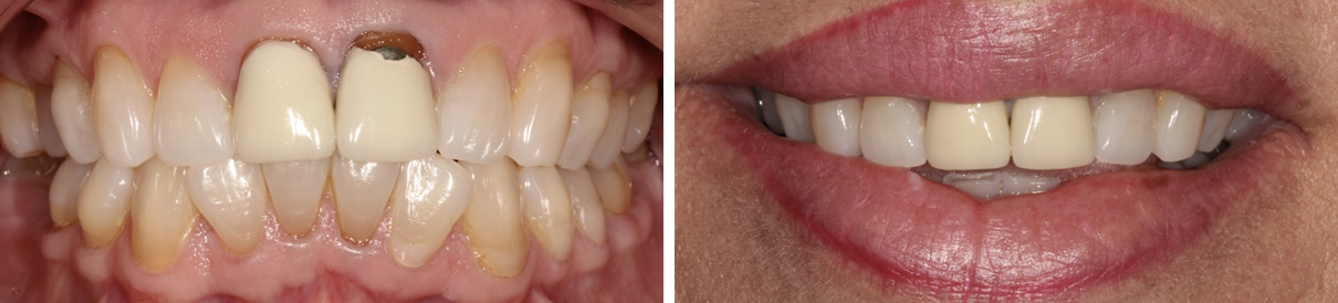 Renewing a Smile with Two New Porcelain Crowns - Before