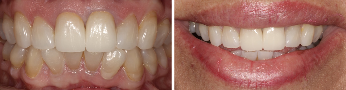 Renewing a Smile with Two New Porcelain Crowns - After