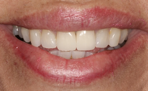 Minimally Invasive Esthetic Improvement #2 - Charlotte, NC