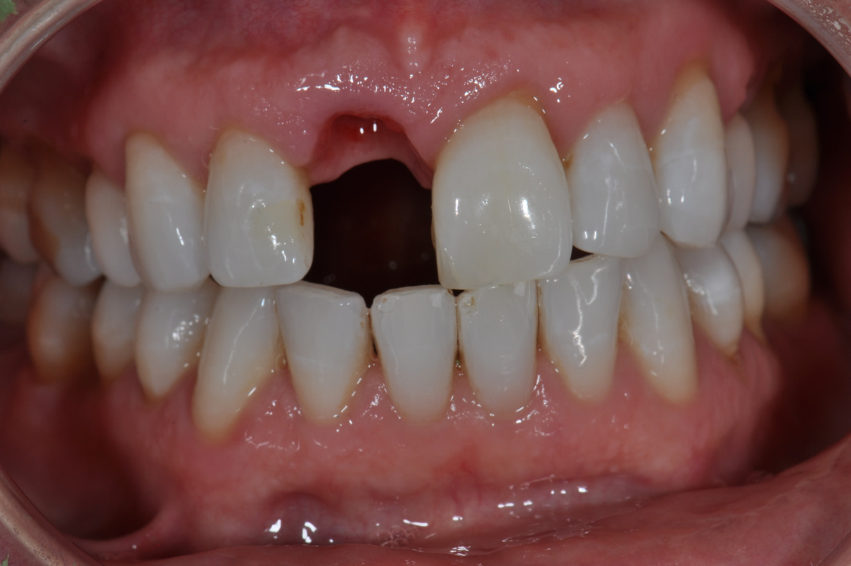 Dental Implant #2 - Before