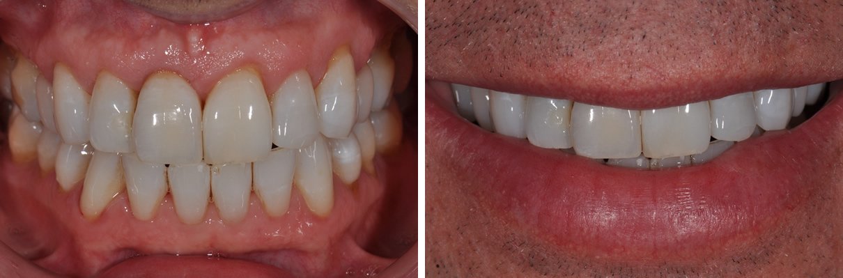 Dental Implant #2 - After