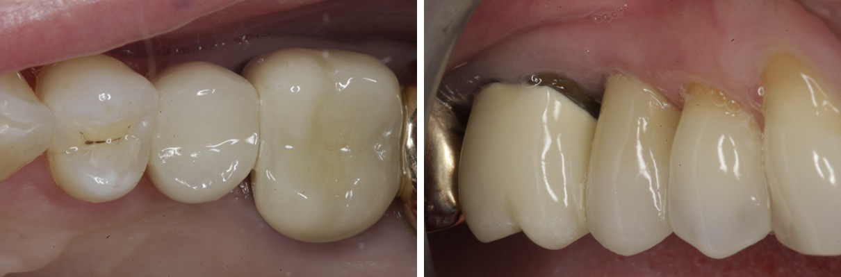 Dental Implant #1 - After