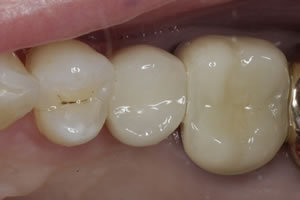 Dental Implant #1- Charlotte, NC