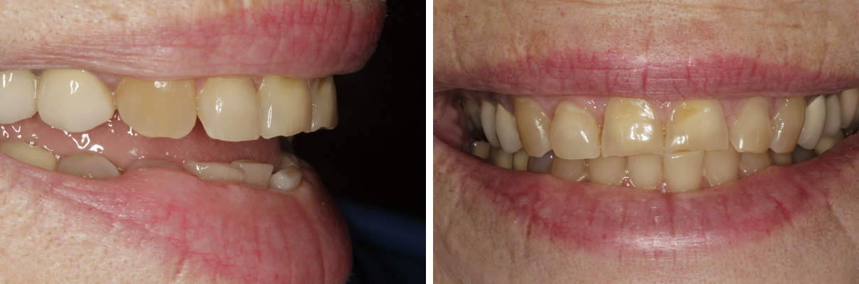 Smile Rejuvenation with Crowns and Veneers - Before