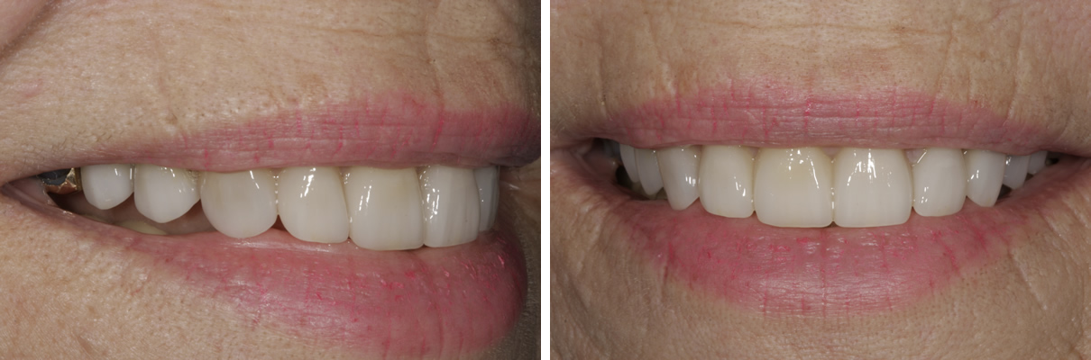 Smile Rejuvenation with Crowns and Veneers - After