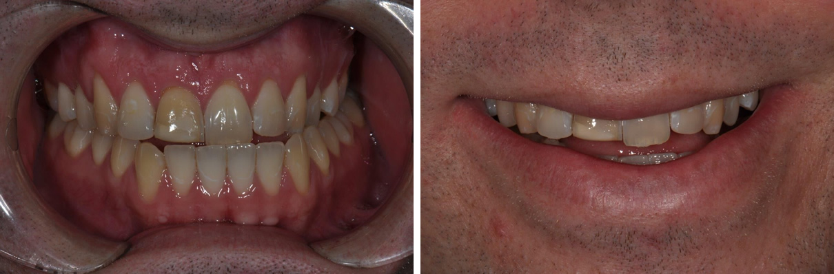 Minimally Invasive Esthetic Improvement - Before