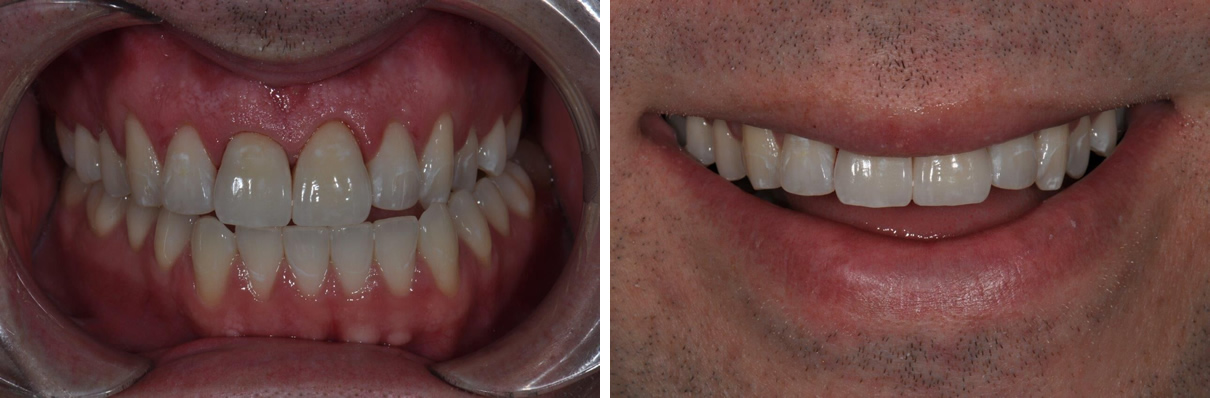 Minimally Invasive Esthetic Improvement - After