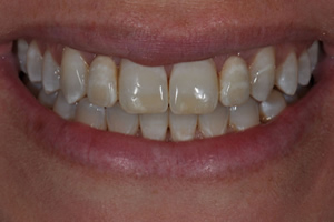 Minimally Invasive Esthetic Improvement #3 - Charlotte, NC