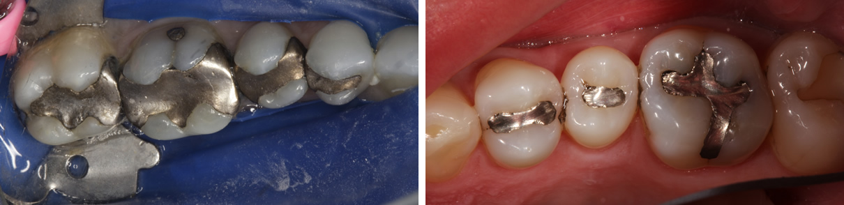 Replacing Failing Amalgam Fillings - Before