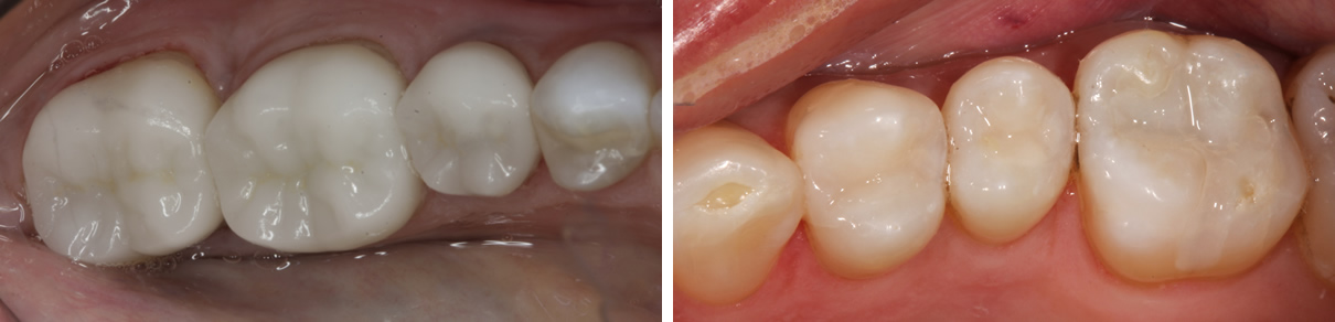 Replacing Failing Amalgam Fillings - After