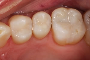 Posterior Crowns and Fillings - Charlotte, NC