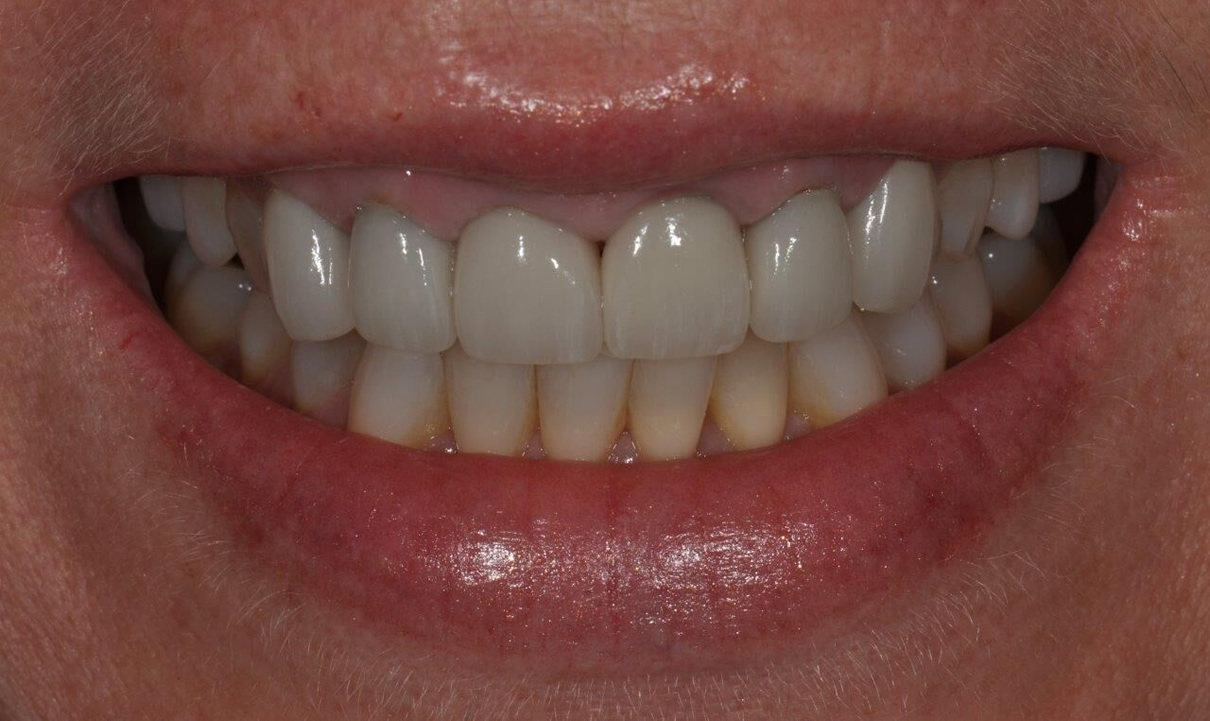 Replacement of Existing Dentistry - Before