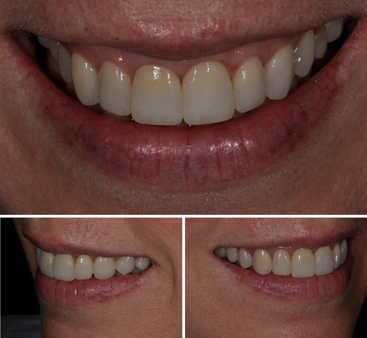 Replacement of Existing Dentistry - After