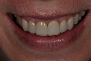 Replacement of Existing Dentistry - Charlotte, NC
