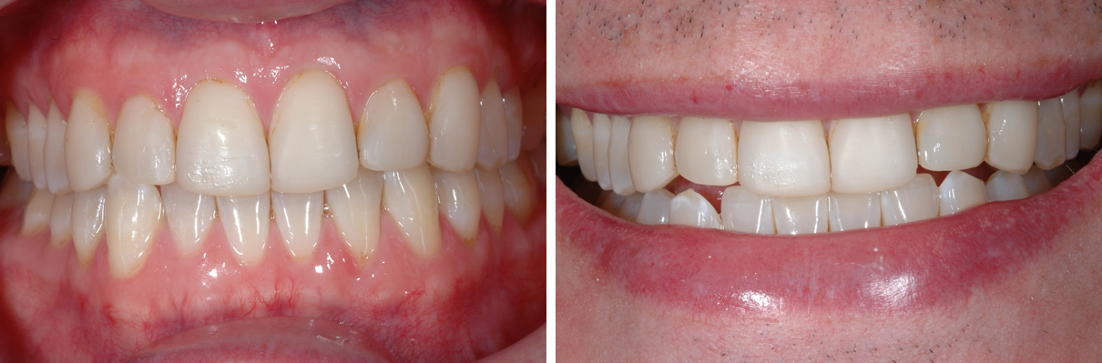 Smile Enhancement Case #1 - Before