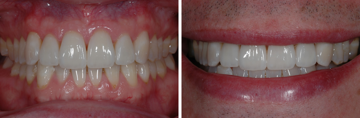Smile Enhancement Case #1 - After