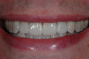 Smile Enhancement Case #1 - Charlotte, NC