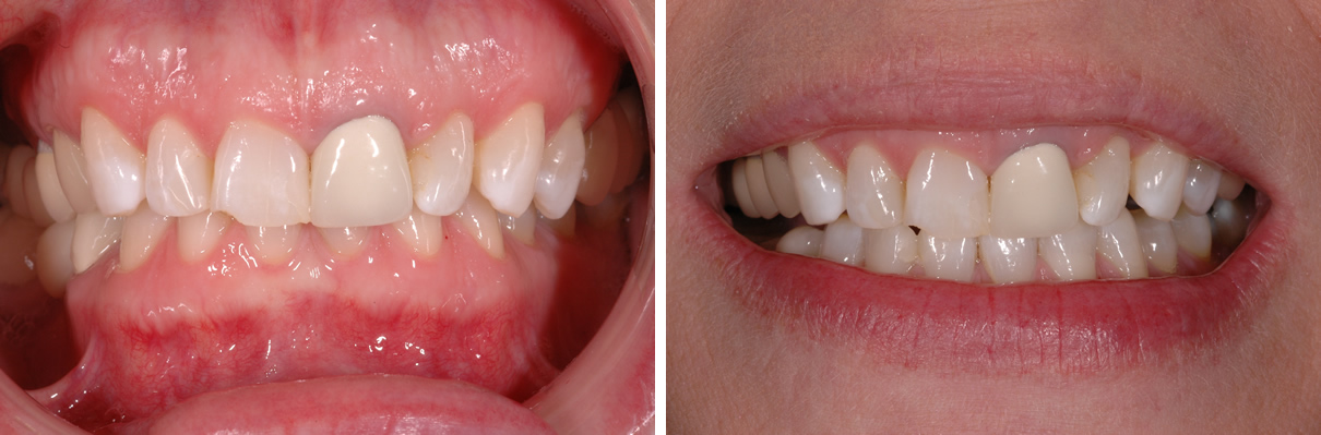 Smile Enhancement Case #2 - Before