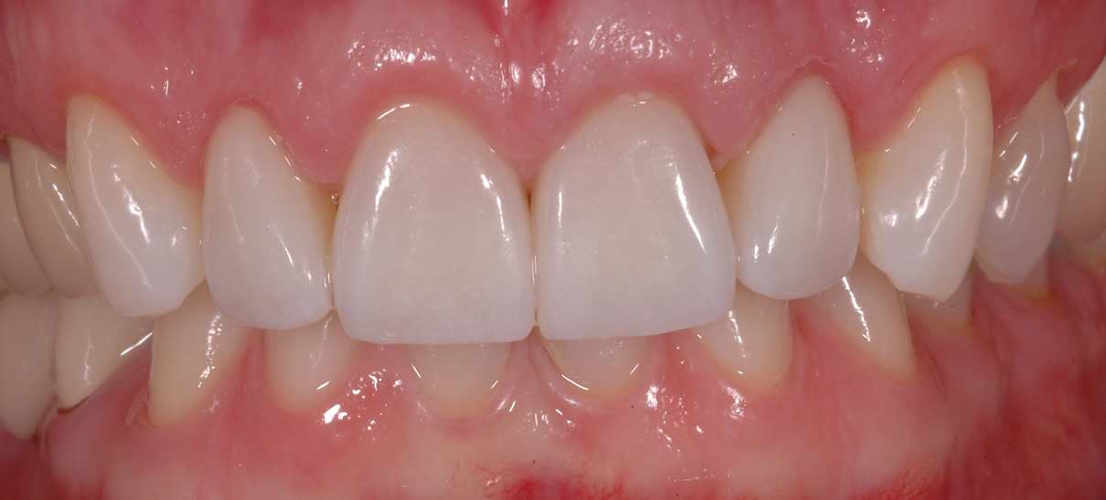 Smile Enhancement Case #2 - After