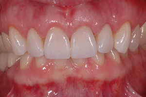 Smile Enhancement Case #2 - Charlotte, NC