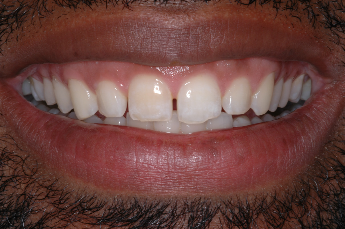 Veneers Case #1 - Before