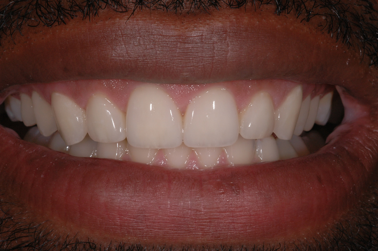 Veneers Case #1 - After