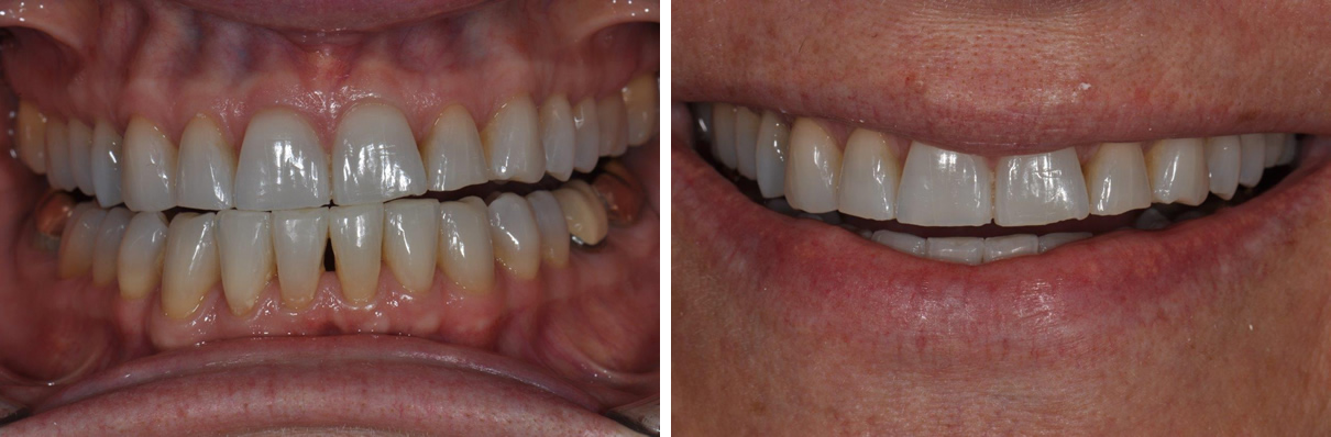 Veneers Case #2 - Before