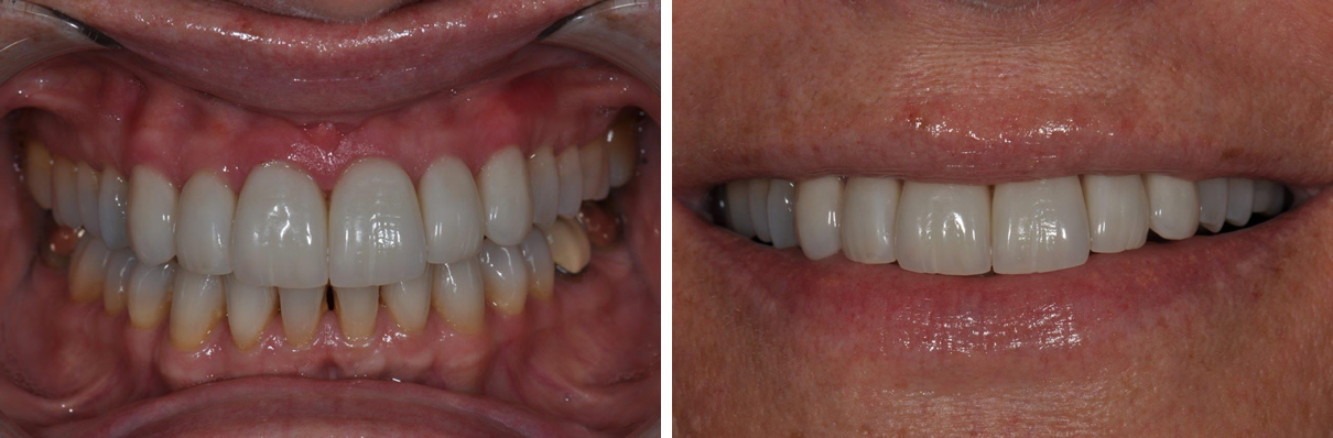 Veneers Case #2 - After