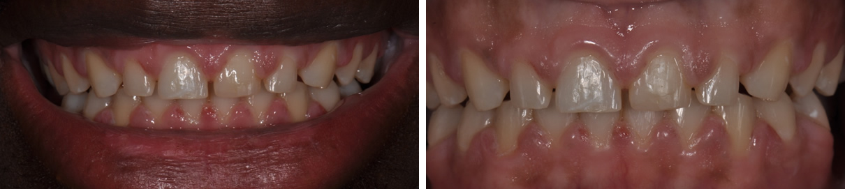 Veneers Case #3 - Before